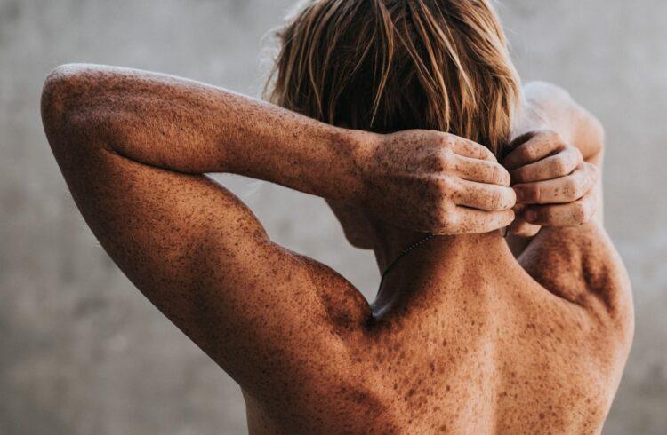 谷歌推出的人工智慧皮膚輔助診斷功能,幫助有皮膚問題的人找到解決之道!
